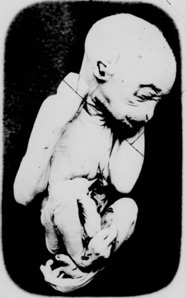 Black-and-white photograph of an orangutan fetus. Being hairless is closely resembles a human fetus, save for the structure of its feet.